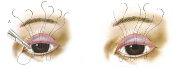 割縫雙眼皮,韓式釘書機縫法