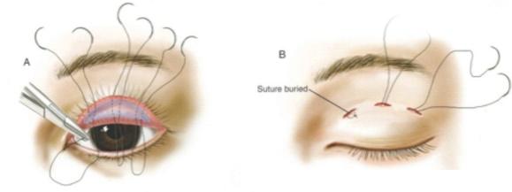 割縫雙眼皮,日式三點式微創