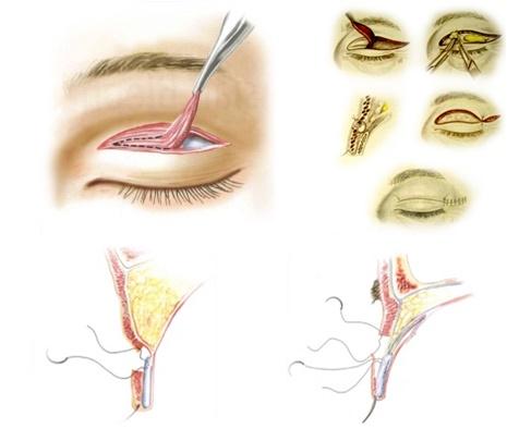割縫雙眼皮,改良型傳統式割雙眼皮