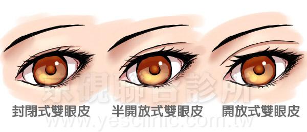 雙眼皮風格, 封閉式雙眼皮, 半開放式雙眼皮, 開放式雙眼皮, 割雙眼皮, 縫雙眼皮, 眼部整形, 京硯整形外科, 京硯聯合診所, 張耀元