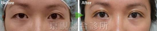 割雙眼皮,縫雙眼皮,京硯整形外科