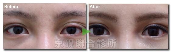 提眼瞼肌,眼瞼下垂,大小眼,愛睏眼,京硯整形外科