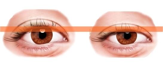提眼瞼肌, 眼瞼下垂, 京硯整形外科, 京硯聯合診所, 張耀元