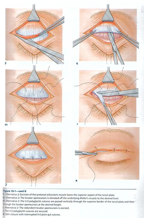 提眼瞼肌,外開式提眼瞼肌手術