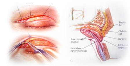 老化性上眼皮整形術,眼皮下垂,京硯整形外科,眼部整形