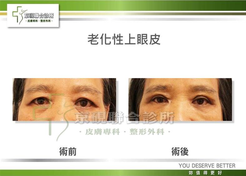 老化性上眼皮