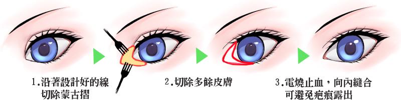 開眼頭, 眼部整形, 蒙古摺, 京硯整形外科, 京硯聯合診所, 張耀元