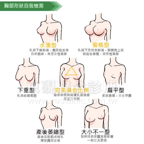 胸型, 胸部形狀, 平胸, 胸部下垂, 產後萎縮, 胸部大小不一,京硯整形外科, 京硯聯合診所, 張耀元