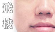 雷射光療, 飛梭, 痘疤, 凹洞, 毛孔粗大, 粗糙肌膚, 問題肌, 回春, 京硯整形外科, 京硯皮膚科, 京硯聯合診所, 張耀元, 蔡逸姍