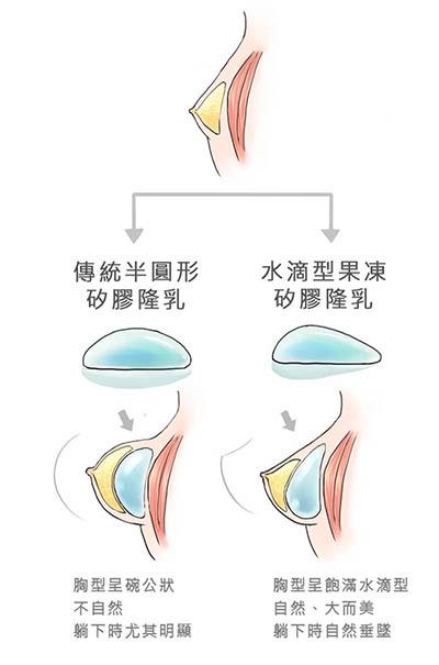 隆乳, 水滴型果凍矽膠, 京硯整形外科, 京硯聯合診所, 張耀元